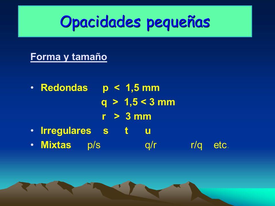 Opacidades pequeñas Forma y tamaño Redondas p < 1,5 mm q > 1,5 < 3 mm r > 3 mm Irregulares s tu Mixtas p/sq/rr/qetc.