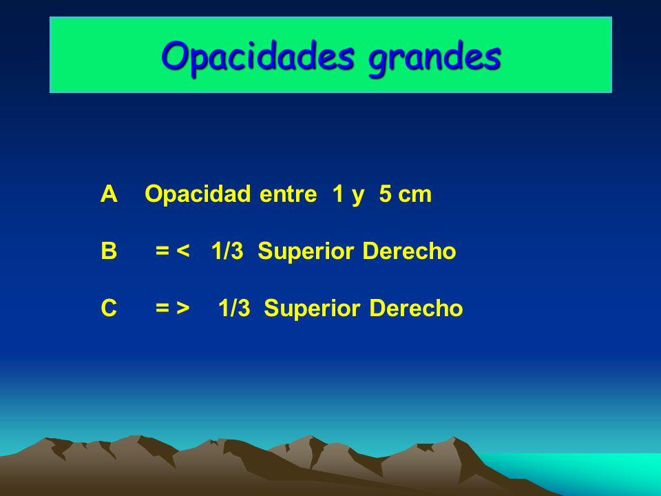 Opacidades grandes A Opacidad entre 1 y 5 cm B= <1/3 Superior Derecho C= > 1/3 Superior Derecho