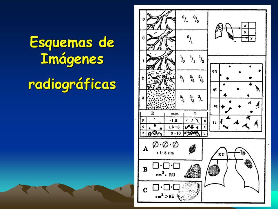 Esquemas de Imágenes radiográficas