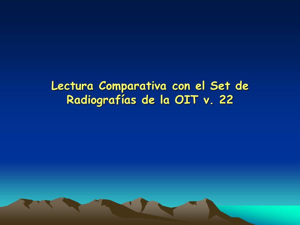 Lectura Comparativa con el Set de Radiografías de la OIT v. 22