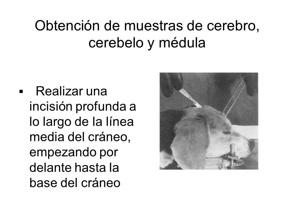 Obtención de muestras de cerebro, cerebelo y médula Realizar una incisión profunda a lo largo de la línea media del cráneo, empezando por delante hast