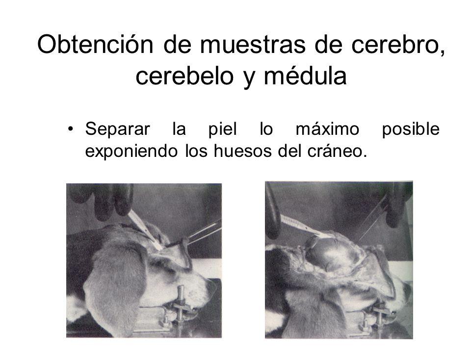 Obtención de muestras de cerebro, cerebelo y médula Realizar cuatro cortes al cráneo con la sierra: -Un corte transversal inmediatamente detrás de la órbita ocular.