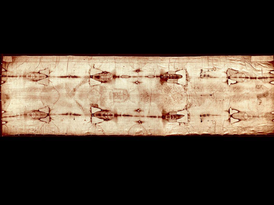 La herida en el pecho Amplio chorreo de sangre en correspondencia de una abertura cutánea con las características de heridas de punta de corte.