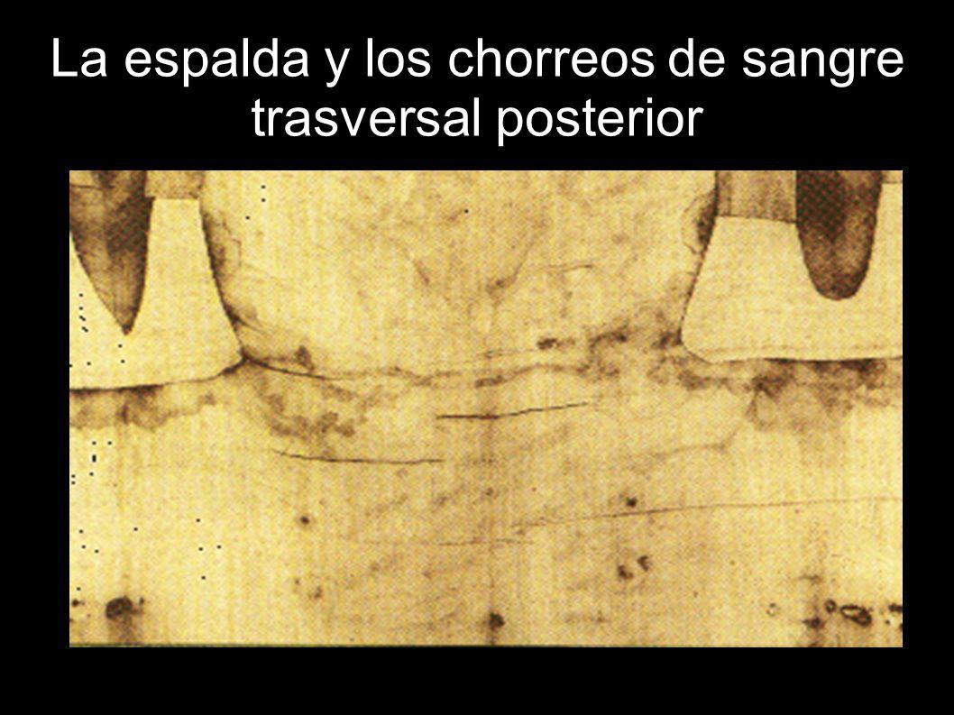 La espalda y los chorreos de sangre trasversal posterior