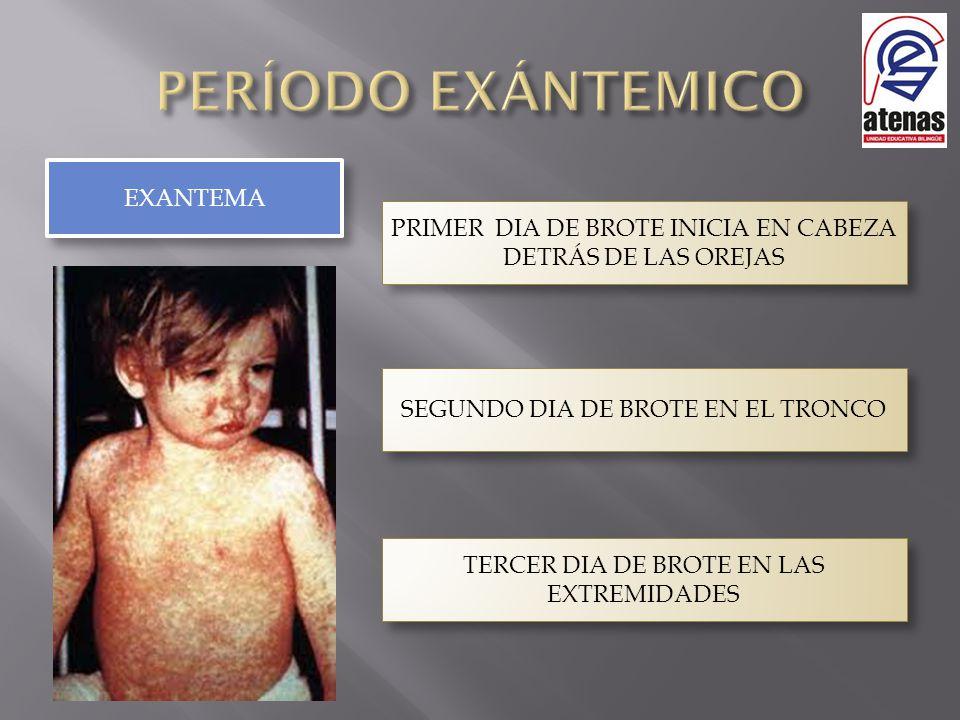 EXANTEMA PRIMER DIA DE BROTE INICIA EN CABEZA DETRÁS DE LAS OREJAS SEGUNDO DIA DE BROTE EN EL TRONCO TERCER DIA DE BROTE EN LAS EXTREMIDADES