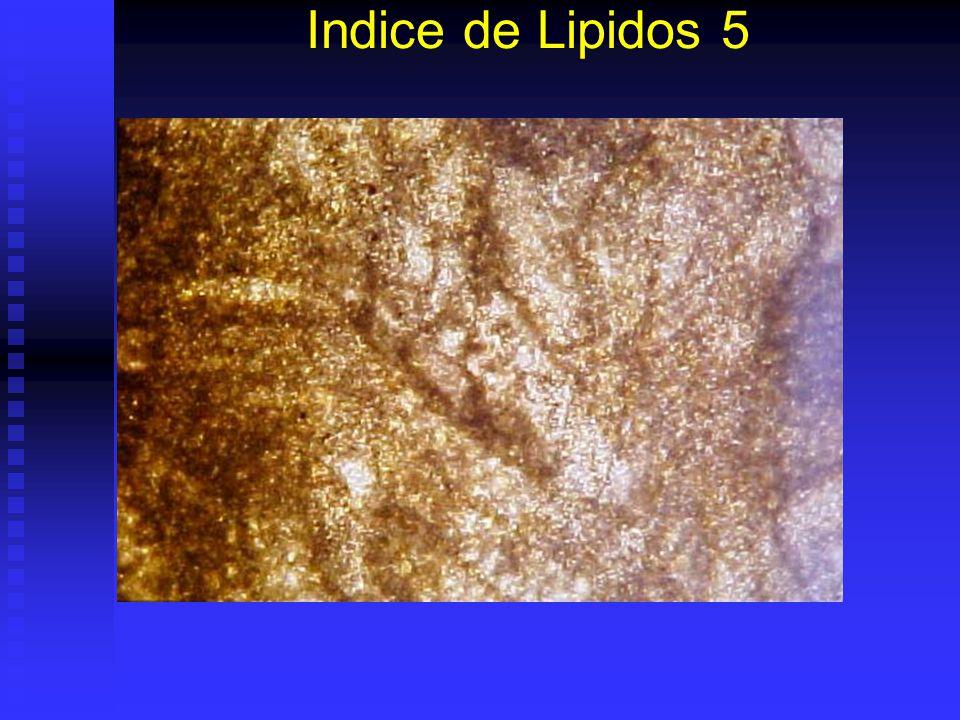 Indice de Lipidos 4