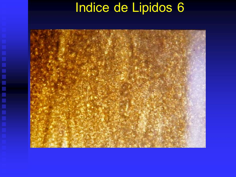 Indice de Lipidos 5