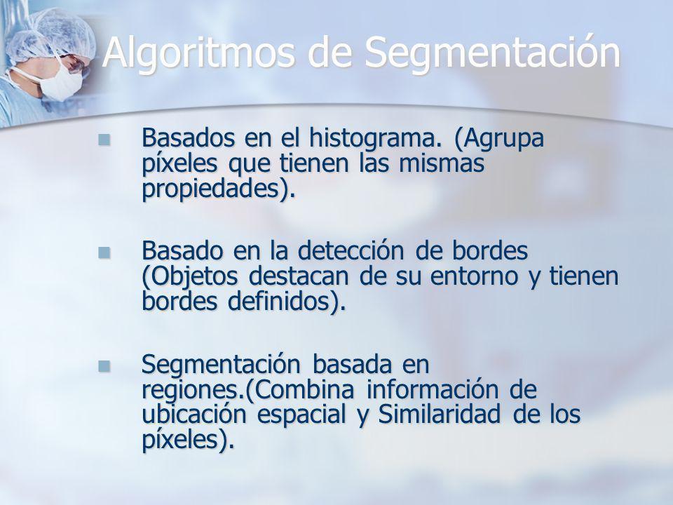 Algoritmos de Segmentación Basados en el histograma. (Agrupa píxeles que tienen las mismas propiedades). Basados en el histograma. (Agrupa píxeles que