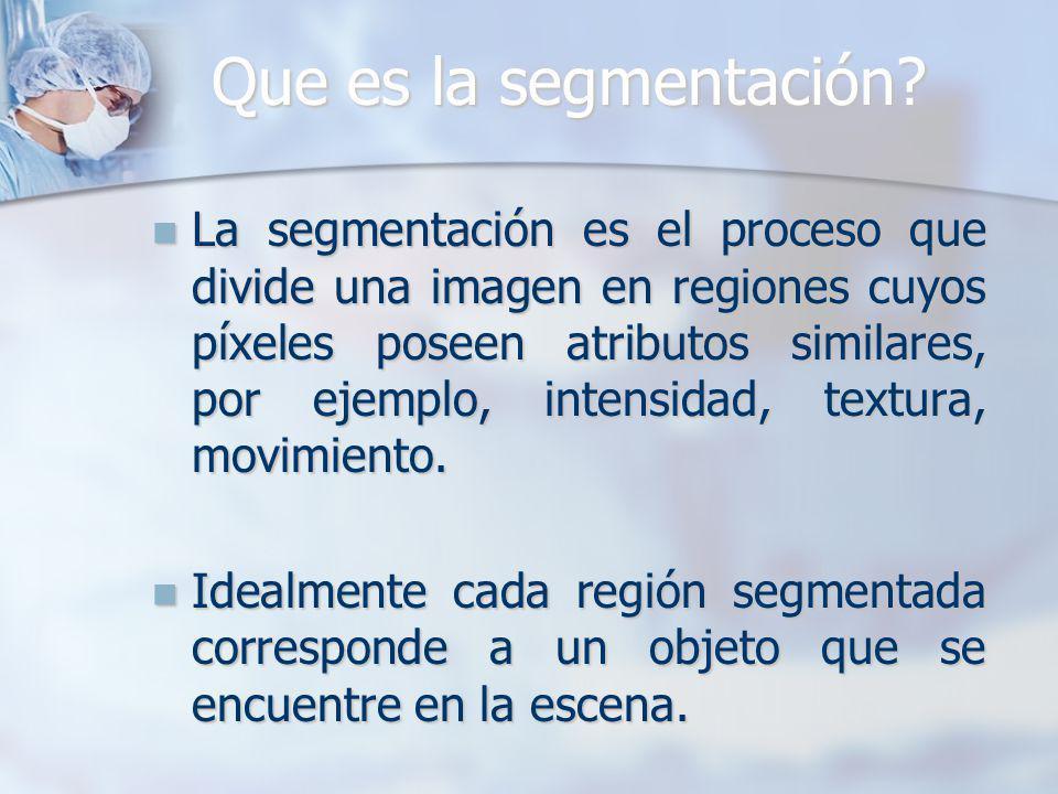 Que es la segmentación? La segmentación es el proceso que divide una imagen en regiones cuyos píxeles poseen atributos similares, por ejemplo, intensi