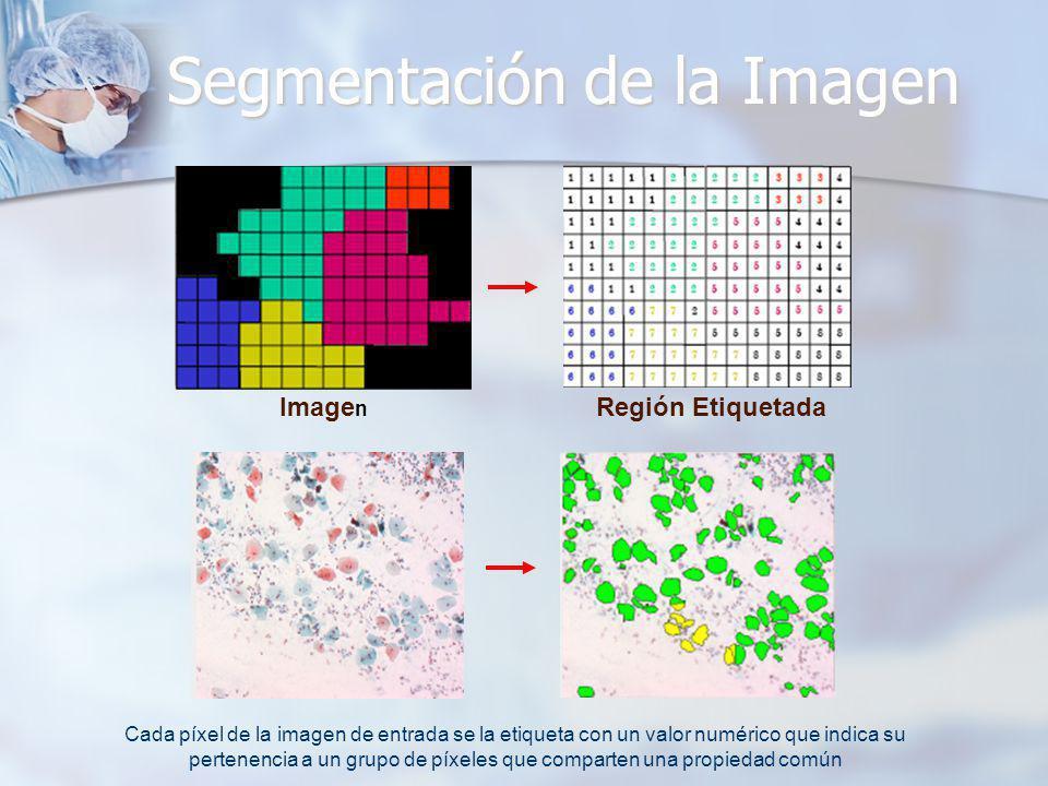 Segmentación de la Imagen Image n Región Etiquetada Cada píxel de la imagen de entrada se la etiqueta con un valor numérico que indica su pertenencia
