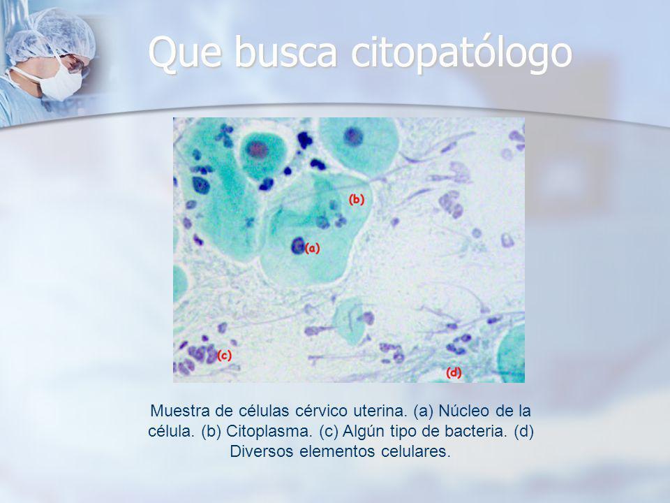 Que busca citopatólogo Muestra de células cérvico uterina. (a) Núcleo de la célula. (b) Citoplasma. (c) Algún tipo de bacteria. (d) Diversos elementos