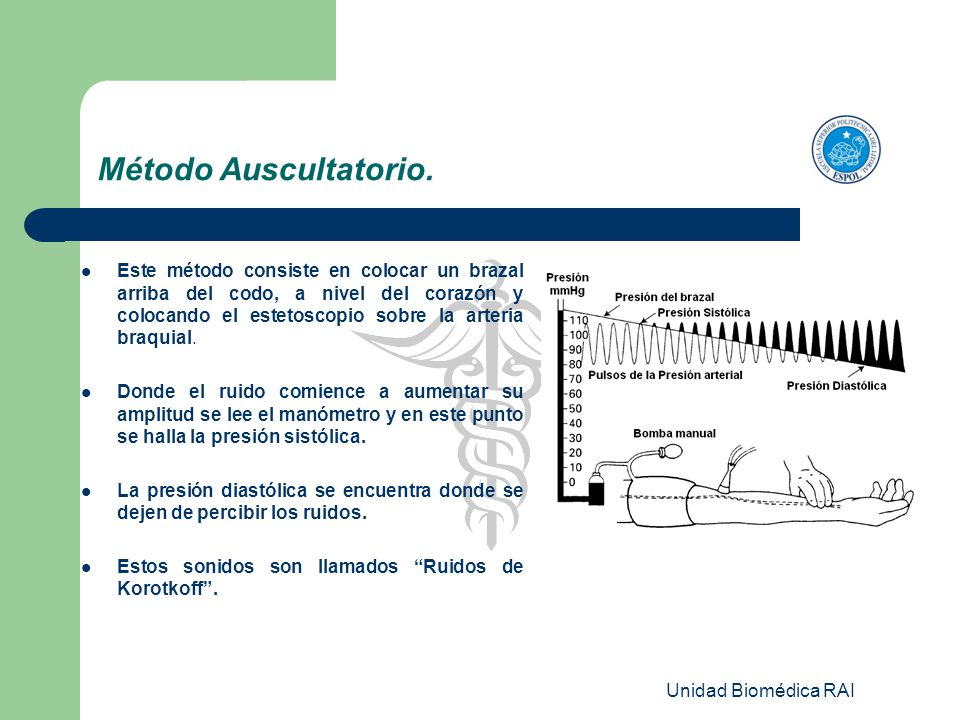 Unidad Biomédica RAI Método Auscultatorio. Este método consiste en colocar un brazal arriba del codo, a nivel del corazón y colocando el estetoscopio