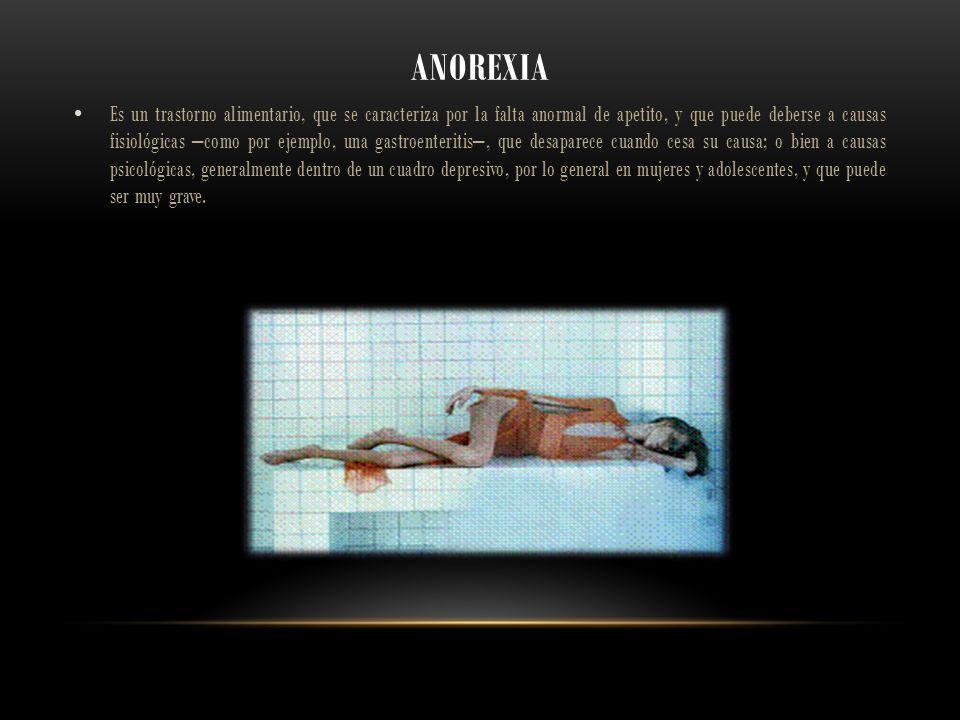ANOREXIA Es un trastorno alimentario, que se caracteriza por la falta anormal de apetito, y que puede deberse a causas fisiológicas –como por ejemplo,
