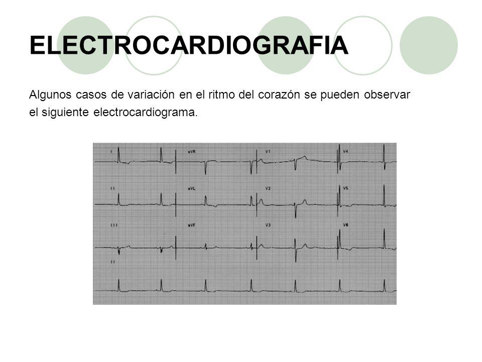 Algunos casos de variación en el ritmo del corazón se pueden observar el siguiente electrocardiograma.