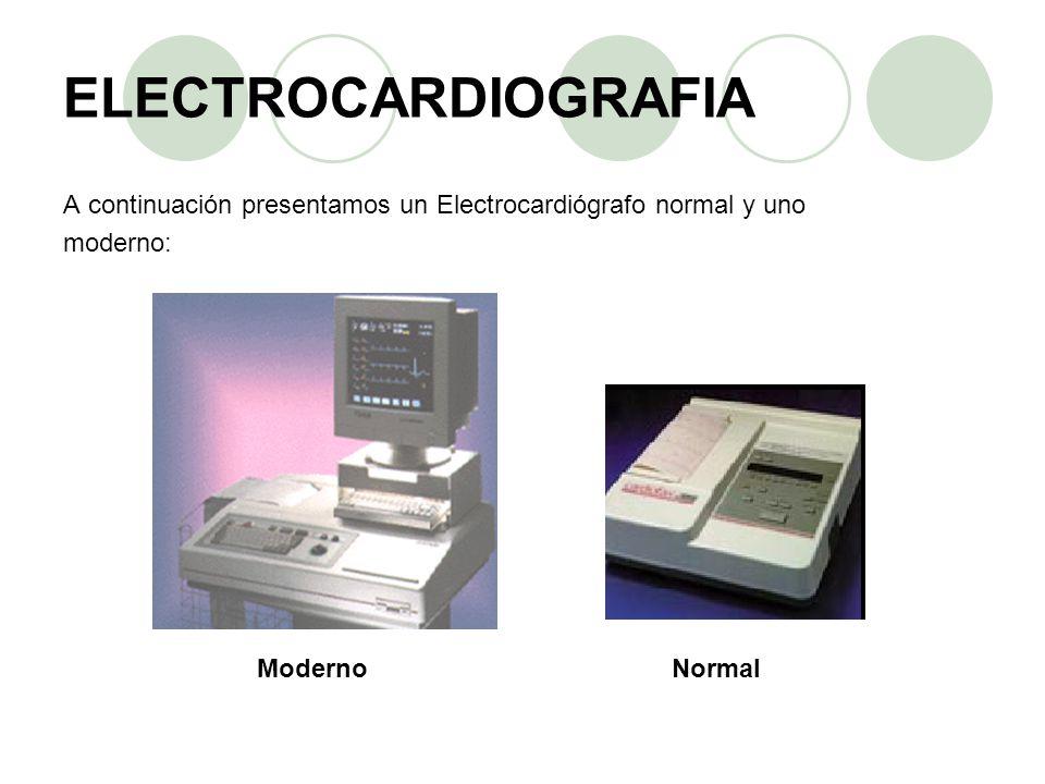 ELECTROCARDIOGRAFIA A continuación presentamos un Electrocardiógrafo normal y uno moderno: ModernoNormal