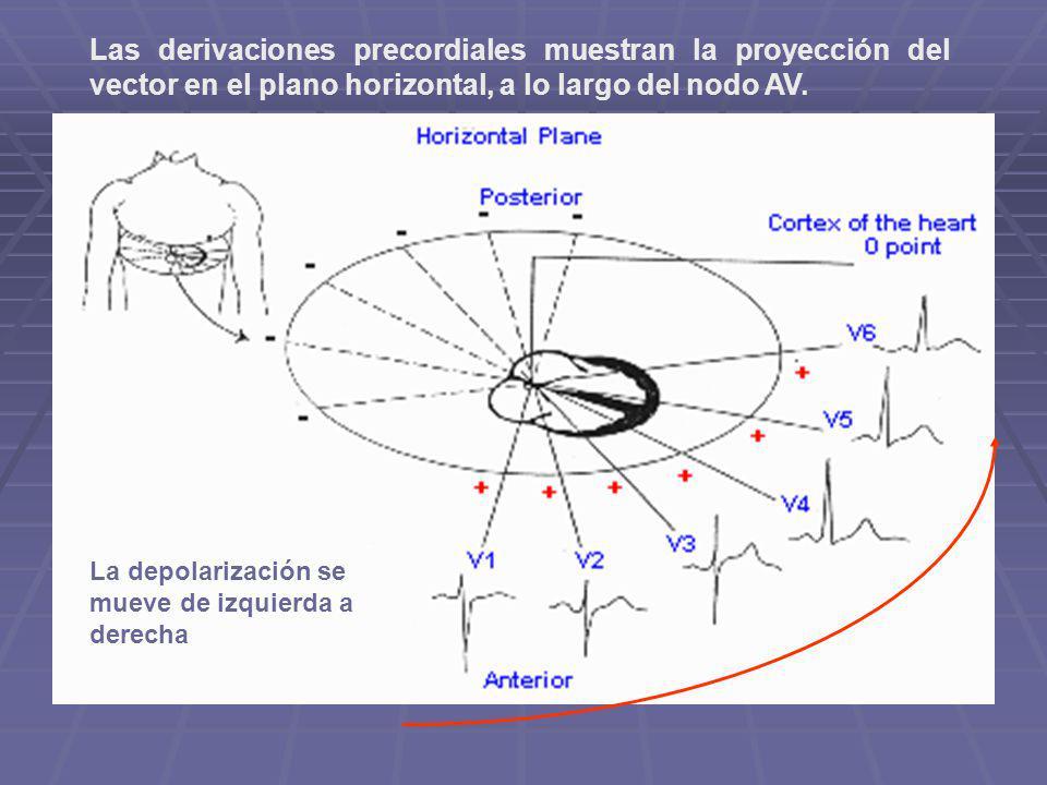 Las derivaciones precordiales muestran la proyección del vector en el plano horizontal, a lo largo del nodo AV. La depolarización se mueve de izquierd