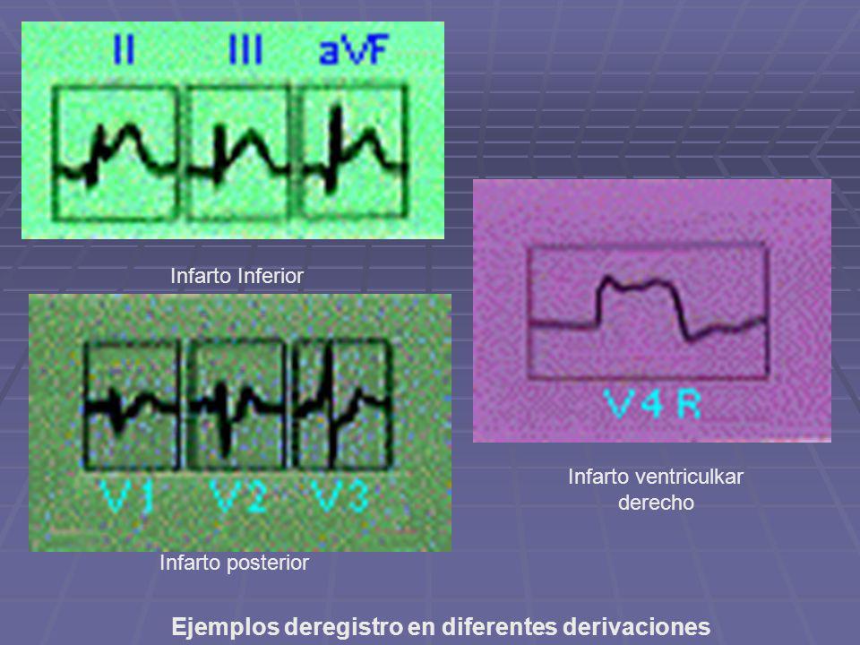 Ejemplos deregistro en diferentes derivaciones Infarto Inferior Infarto posterior Infarto ventriculkar derecho