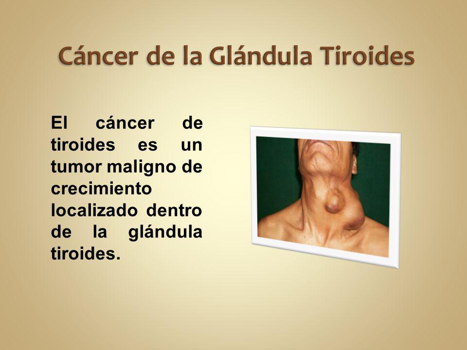 El cáncer de tiroides es un tumor maligno de crecimiento localizado dentro de la glándula tiroides.