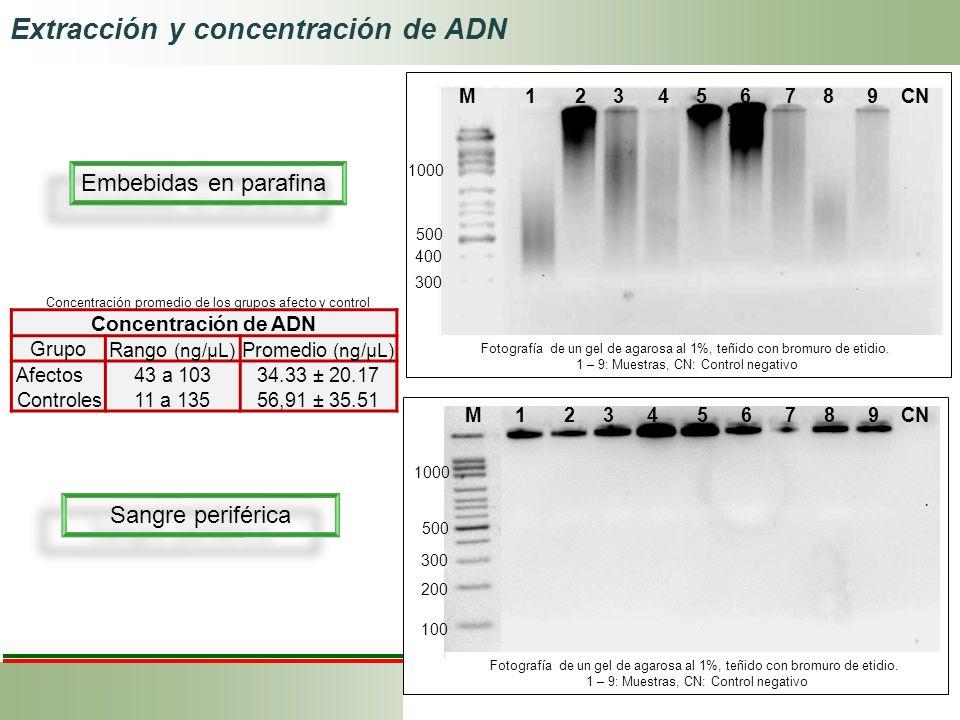 Embebidas en parafina Sangre periférica Concentración de ADN Grupo Rango (ng/μL) Promedio (ng/μL) Afectos43 a 10334.33 ± 20.17 Controles11 a 13556,91