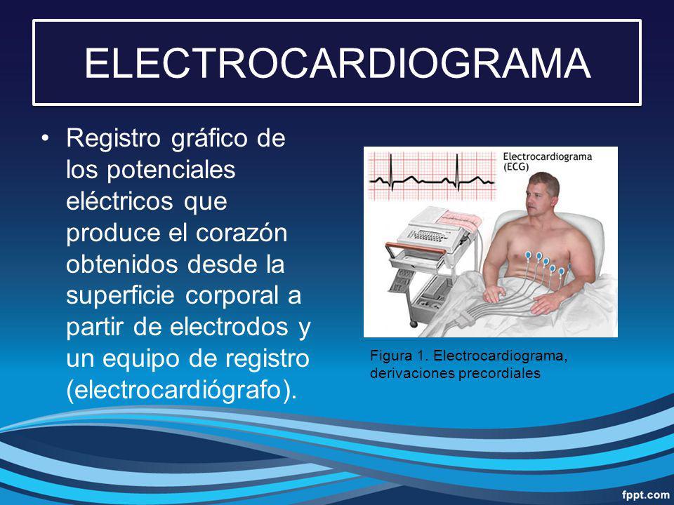 ELECTROCARDIOGRAMA Registro gráfico de los potenciales eléctricos que produce el corazón obtenidos desde la superficie corporal a partir de electrodos
