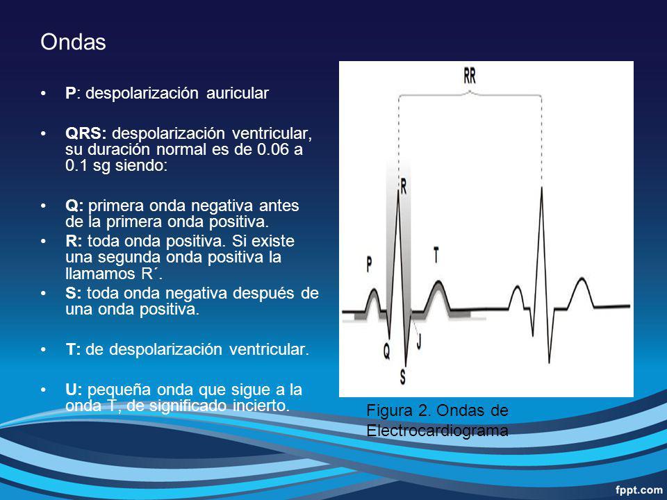 Ondas P: despolarización auricular QRS: despolarización ventricular, su duración normal es de 0.06 a 0.1 sg siendo: Q: primera onda negativa antes de