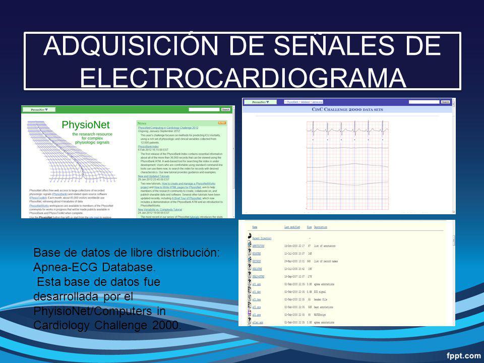 ADQUISICIÓN DE SEÑALES DE ELECTROCARDIOGRAMA Base de datos de libre distribución: Apnea-ECG Database. Esta base de datos fue desarrollada por el Phyis