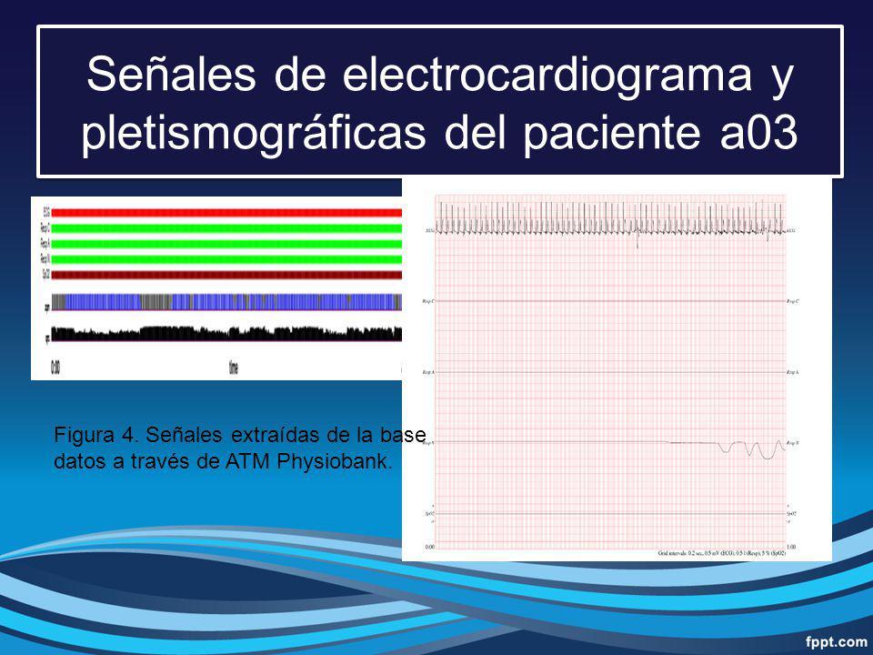 Señales de electrocardiograma y pletismográficas del paciente a03 Figura 4. Señales extraídas de la base datos a través de ATM Physiobank.