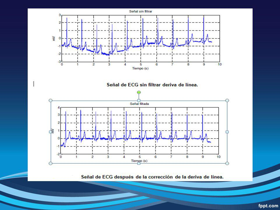 Objetivo: Detectar el pico R.Se elimina ondas T de gran amplitud y ruido de diversa procedencia.