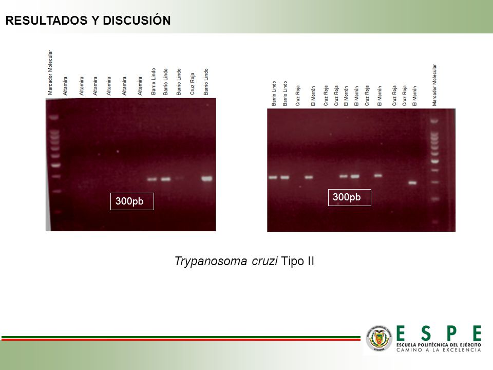 300pb Trypanosoma cruzi Tipo II RESULTADOS Y DISCUSIÓN