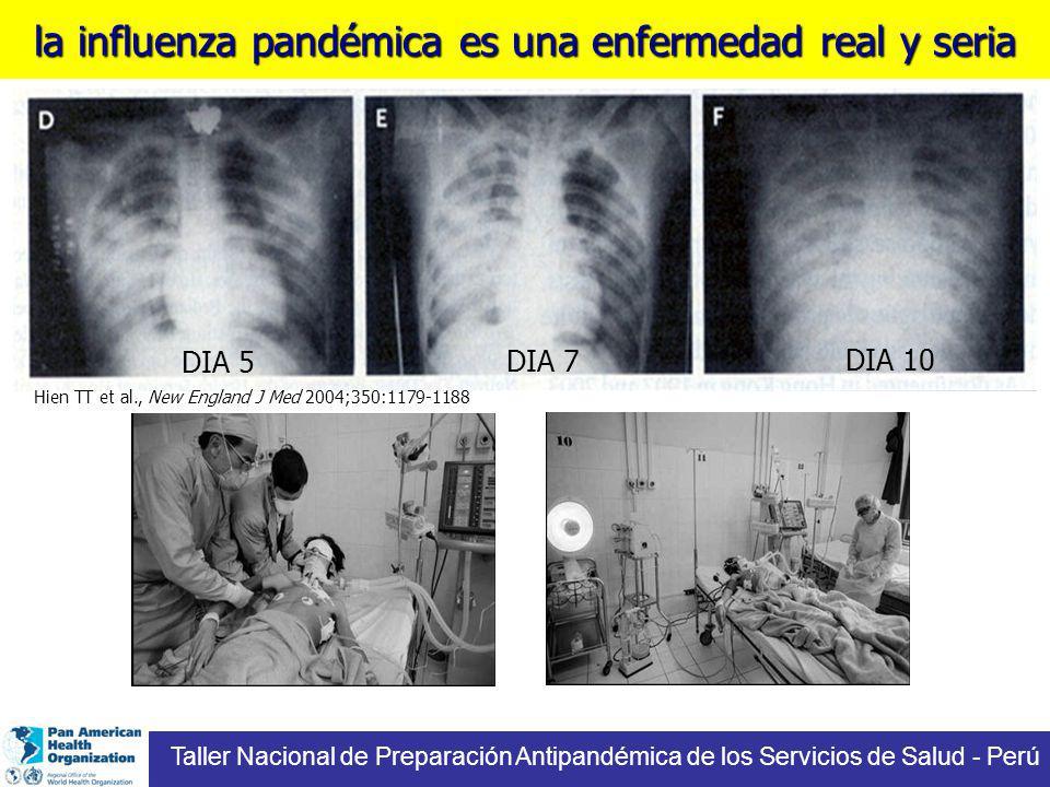 la influenza pandémica es una enfermedad real y seria DIA 5 DIA 7 DIA 10 Hien TT et al., New England J Med 2004;350:1179-1188 Taller Nacional de Preparación Antipandémica de los Servicios de Salud - Perú
