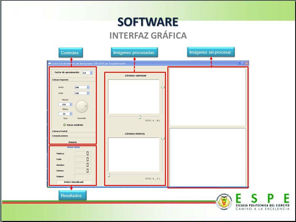 SOFTWARE SOFTWARE INTERFAZ GRÁFICA Controles Imágenes sin procesar Imágenes procesadas Resultados