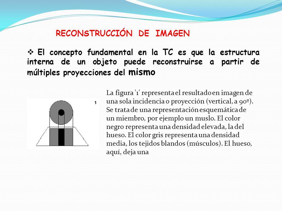 RECONSTRUCCIÓN DE IMAGEN El concepto fundamental en la TC es que la estructura interna de un objeto puede reconstruirse a partir de múltiples proyecciones del mismo La figura 1 representa el resultado en imagen de una sola incidencia o proyección (vertical, a 90º).