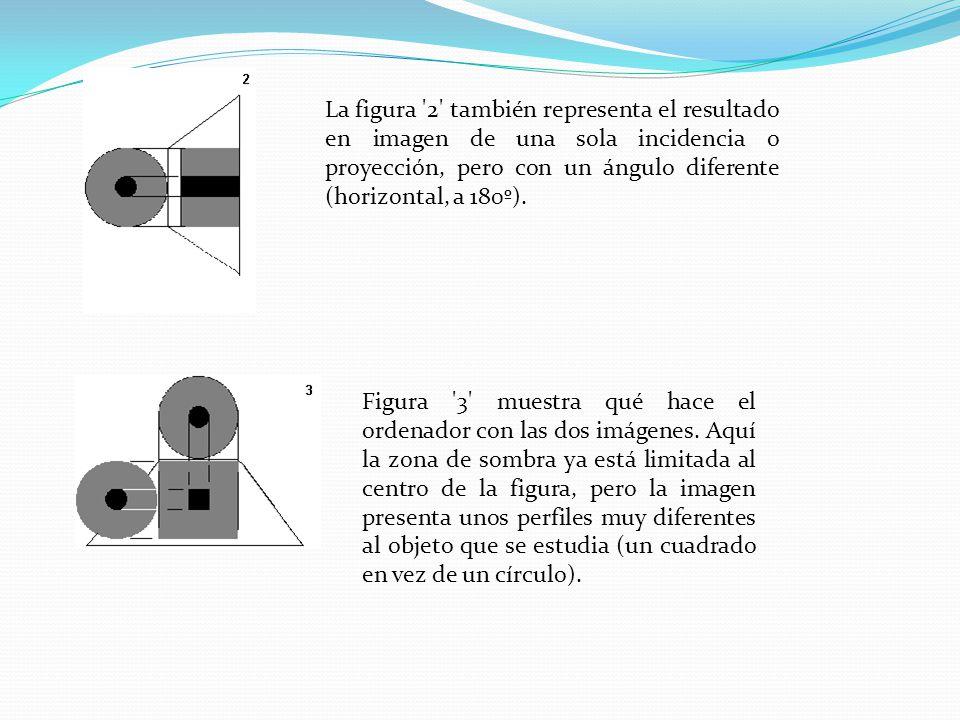 La figura '2' también representa el resultado en imagen de una sola incidencia o proyección, pero con un ángulo diferente (horizontal, a 180º). Figura
