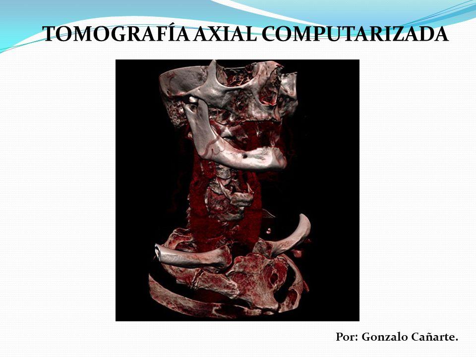 TOMOGRAFÍA AXIAL COMPUTARIZADA Por: Gonzalo Cañarte.