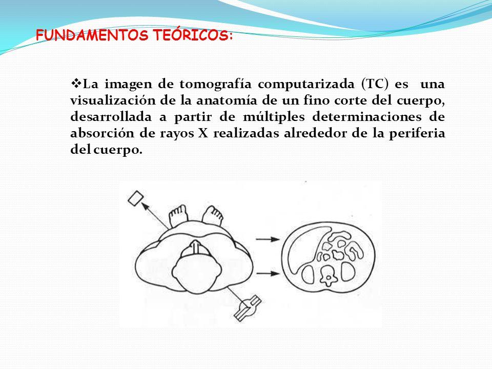 FUNDAMENTOS TEÓRICOS: La imagen de tomografía computarizada (TC) es una visualización de la anatomía de un fino corte del cuerpo, desarrollada a parti