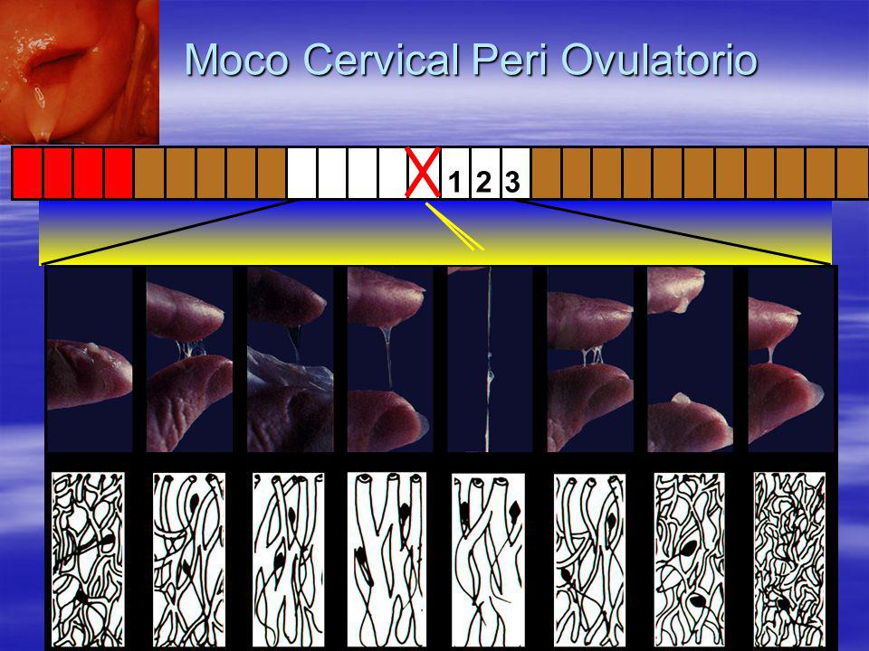 1 2 3 Moco Cervical Peri Ovulatorio