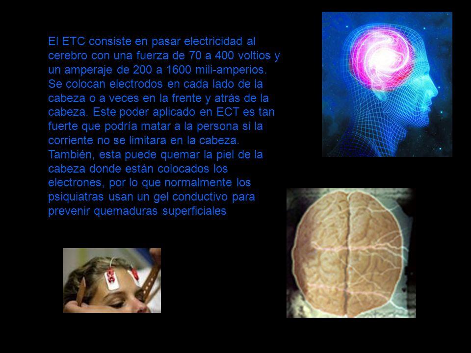 El ETC consiste en pasar electricidad al cerebro con una fuerza de 70 a 400 voltios y un amperaje de 200 a 1600 mili-amperios. Se colocan electrodos e