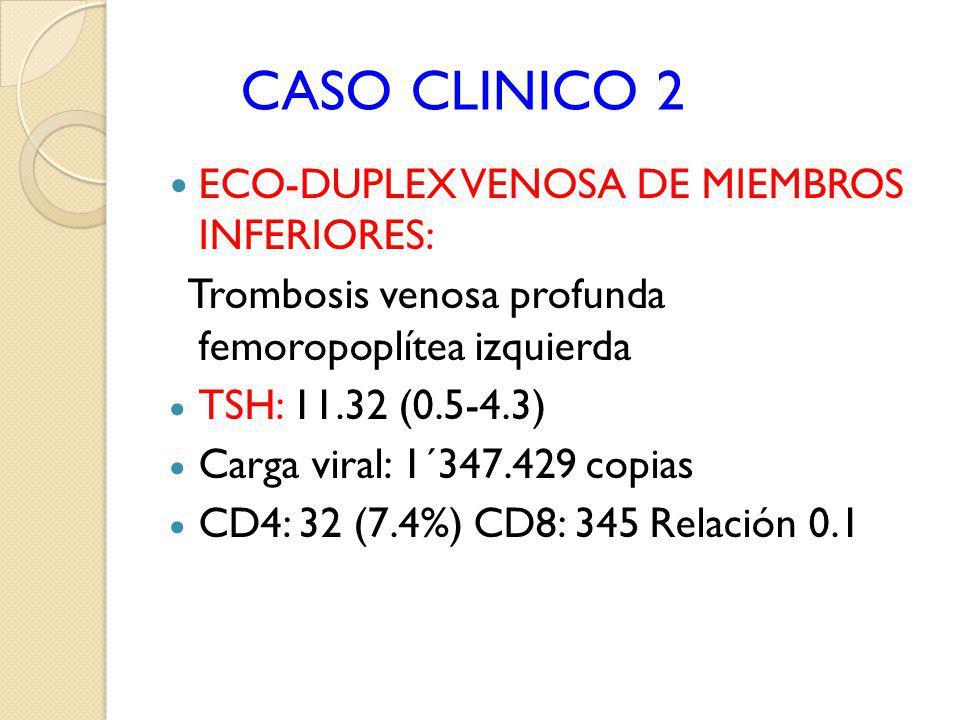 CASO CLINICO 2 ECO-DUPLEX VENOSA DE MIEMBROS INFERIORES: Trombosis venosa profunda femoropoplítea izquierda TSH: 11.32 (0.5-4.3) Carga viral: 1´347.42