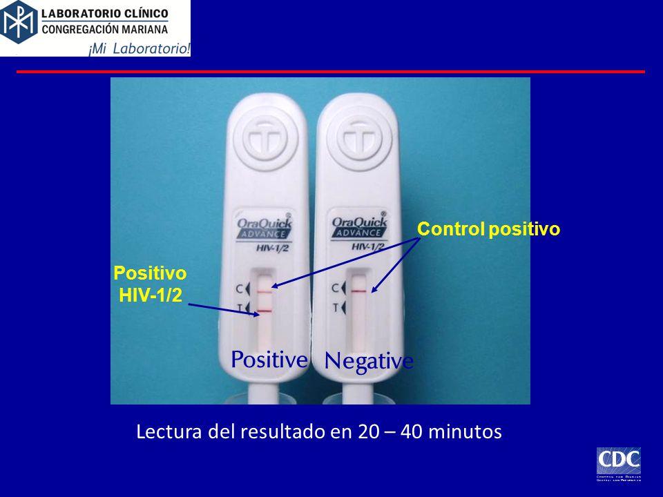 Positive Negative Control positivo Positivo HIV-1/2 Lectura del resultado en 20 – 40 minutos
