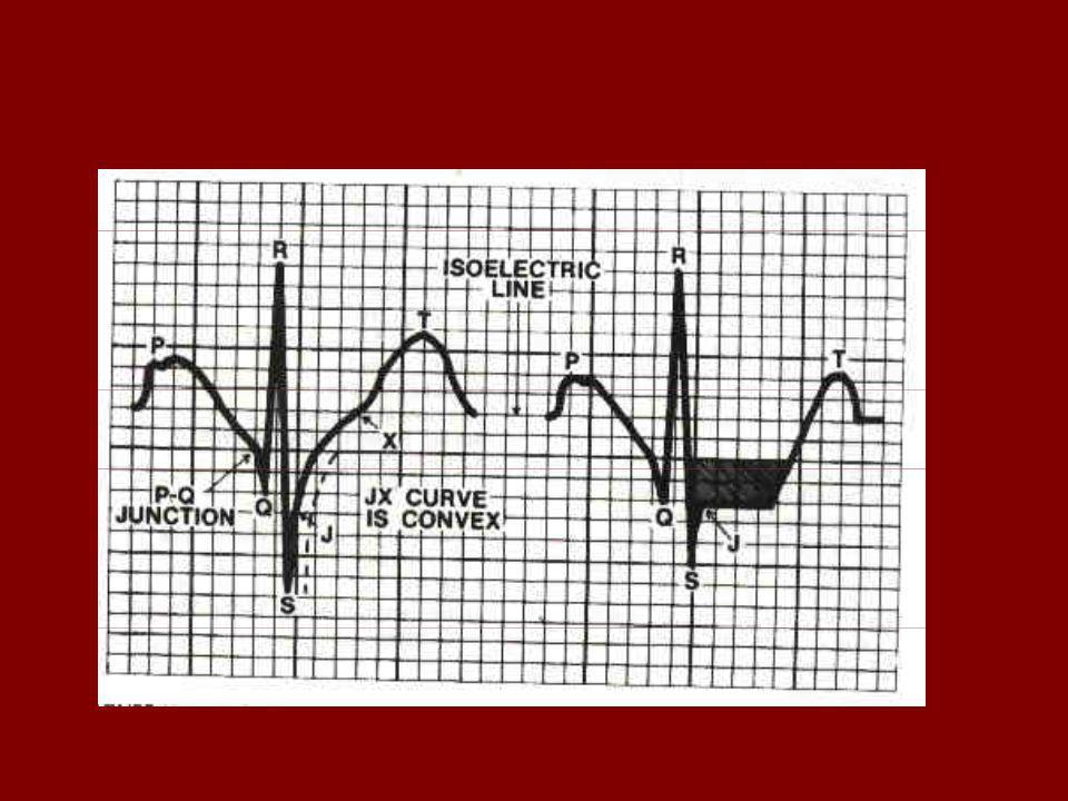 PRUEBA DE ESFUERZO ECG SECUENCIA FUNCIONAL DE LA ISQUEMIA Alteraciones del metabolismo cardíaco. Alteración de la función diastólica. Alteración de la