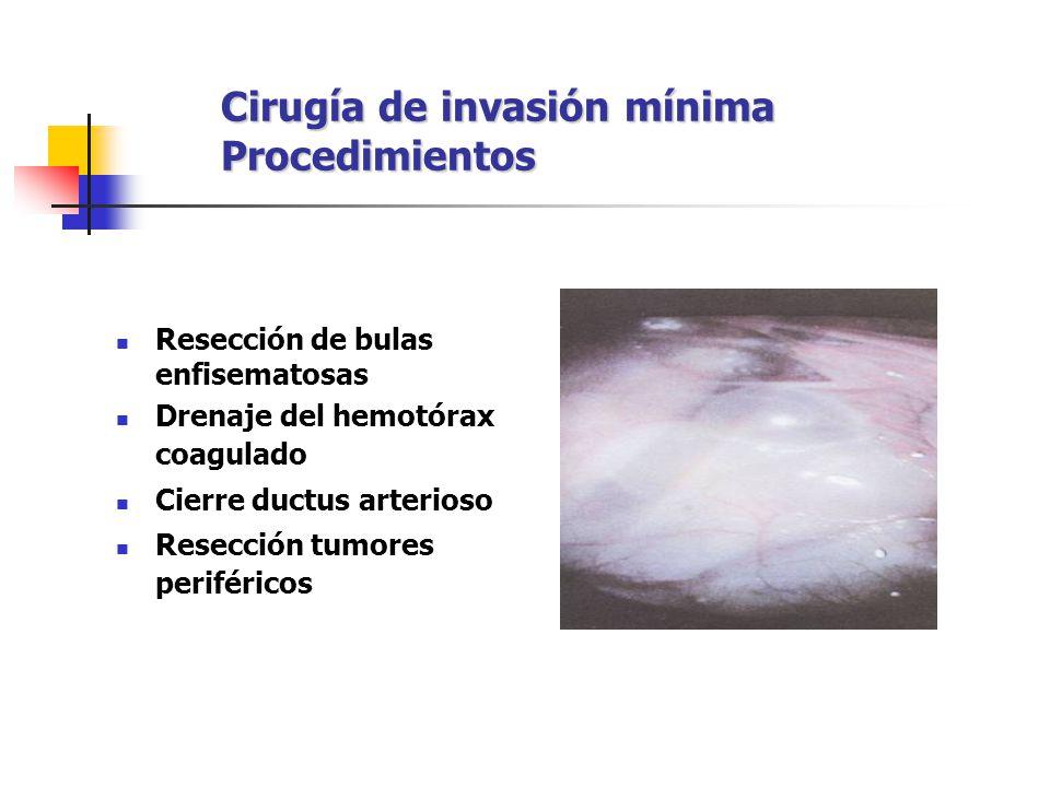 Cirugía de invasión mínima Procedimientos Resección de bulas enfisematosas Drenaje del hemotórax coagulado Cierre ductus arterioso Resección tumores p