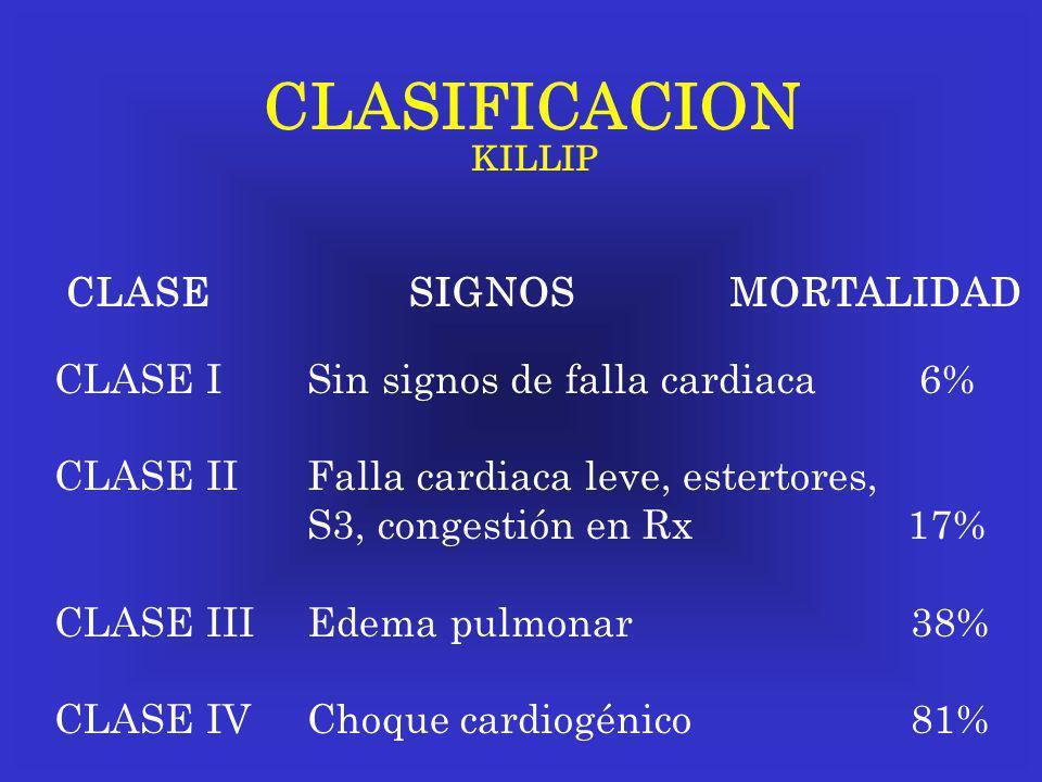 CLASIFICACION KILLIP CLASE SIGNOS MORTALIDAD CLASE I Sin signos de falla cardiaca 6% CLASE II Falla cardiaca leve, estertores, S3, congestión en Rx 17