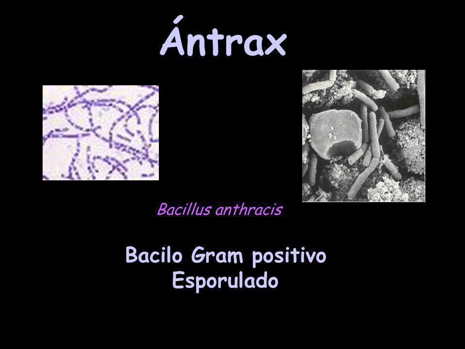 Ántrax Bacillus anthracis Bacilo Gram positivo Esporulado