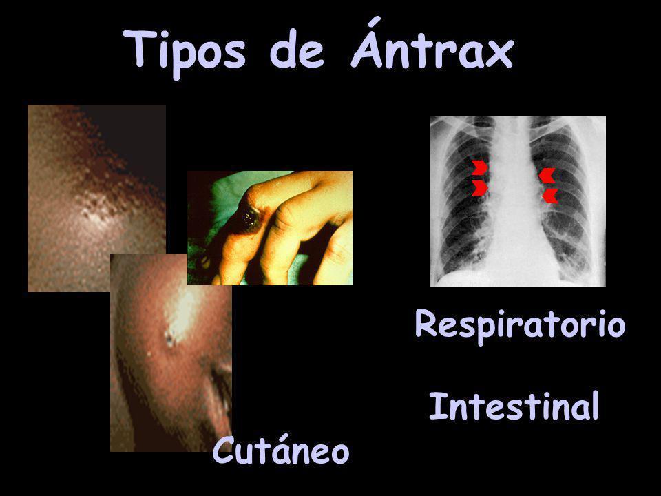 Ántrax Bacillus anthracis Dosis: 8.000-50.000 esporas Incubación: 1 a 5 días Vacuna: 0, 2 y 4 semanas, 6, 12 y 18 meses un refuerzo anual.