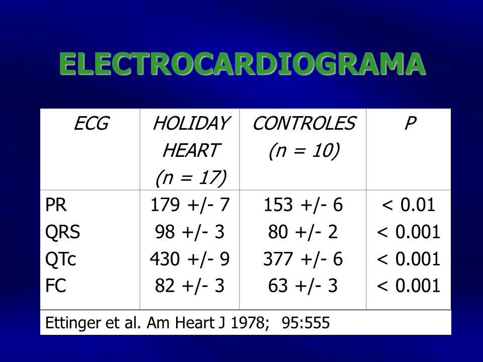 ECGHOLIDAY HEART (n = 17) CONTROLES (n = 10) P PR QRS QTc FC 179 +/- 7 98 +/- 3 430 +/- 9 82 +/- 3 153 +/- 6 80 +/- 2 377 +/- 6 63 +/- 3 < 0.01 < 0.001 Ettinger et al.