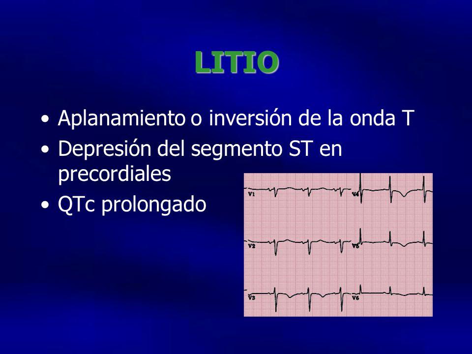 LITIO Aplanamiento o inversión de la onda T Depresión del segmento ST en precordiales QTc prolongado