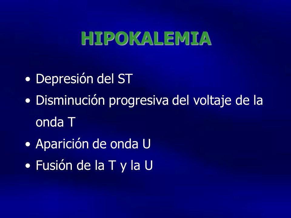HIPOKALEMIA Depresión del ST Disminución progresiva del voltaje de la onda T Aparición de onda U Fusión de la T y la U