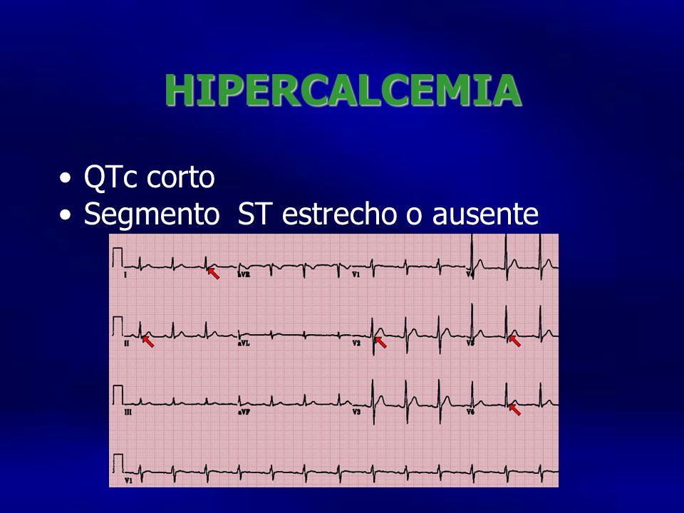 HIPERCALCEMIA QTc corto Segmento ST estrecho o ausente