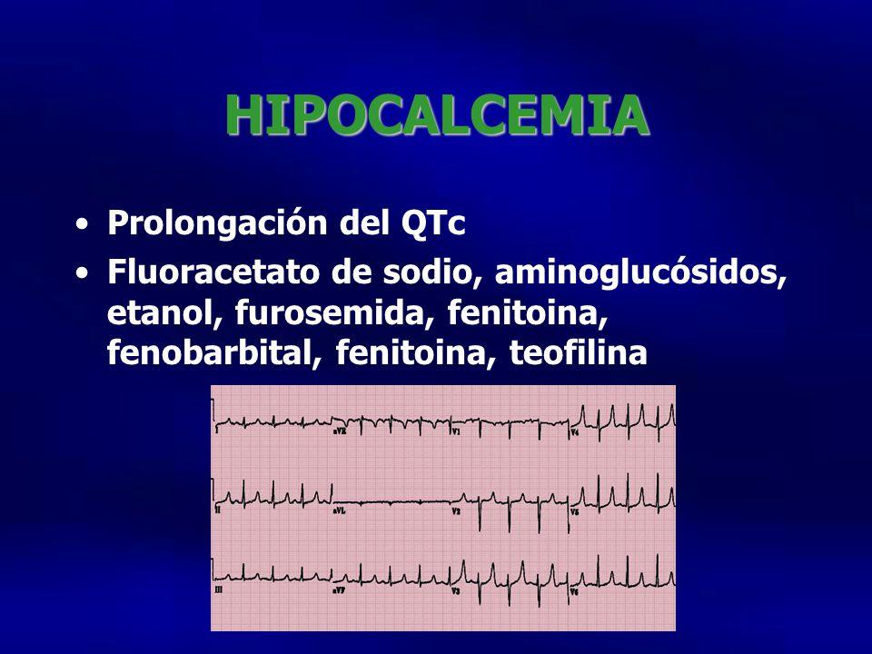 HIPOCALCEMIA Prolongación del QTc Fluoracetato de sodio, aminoglucósidos, etanol, furosemida, fenitoina, fenobarbital, fenitoina, teofilina