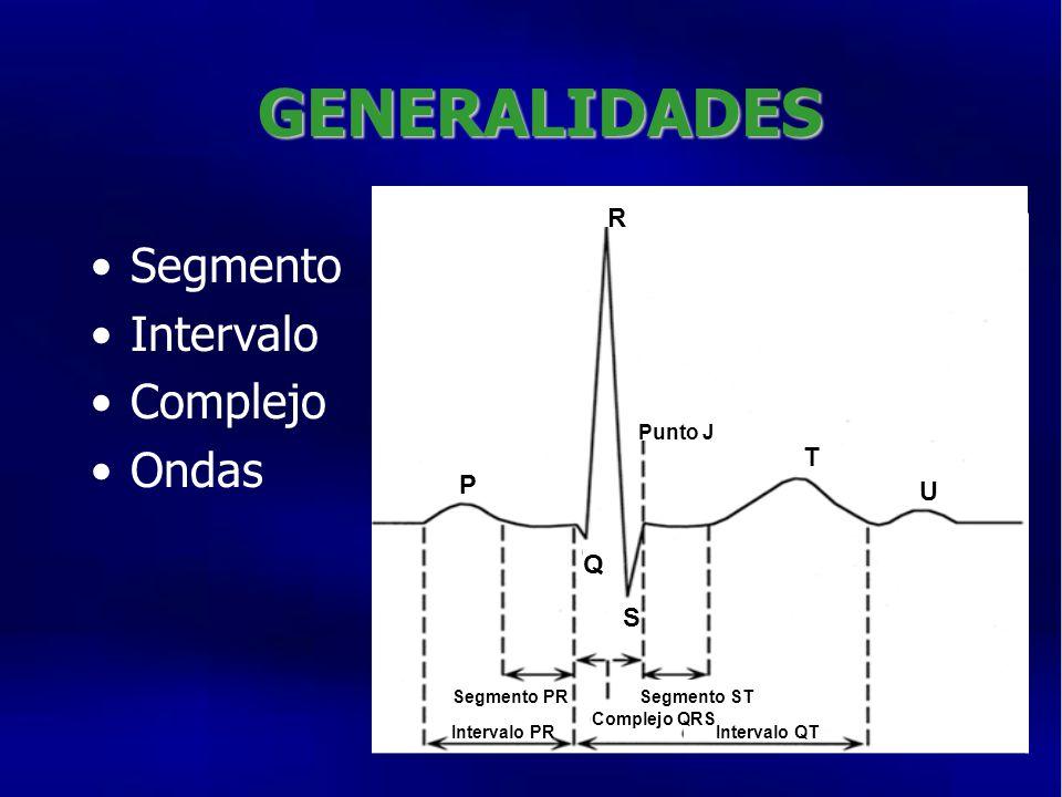 GENERALIDADES Segmento Intervalo Complejo Ondas RR Segmento PR Intervalo PR Segmento ST Complejo QRS Intervalo QT P Punto J T U Q S R